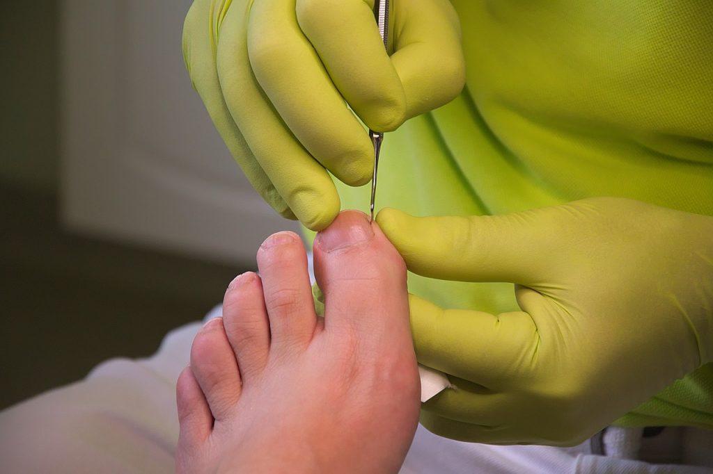 foot care, podiatry, treatment